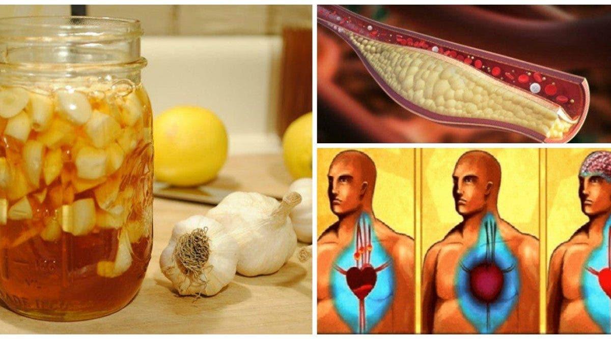 Vous ne devez consommer que du citron et de l'ail pour nettoyer les artères, éliminer le mauvais cholestérol et éviter la crise cardiaque